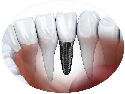 Finding Where To Get Affordable Cost Of Dental Implants In San Diego