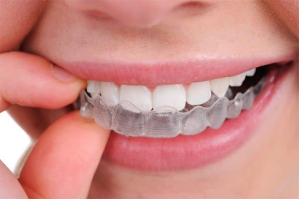 Justifications Why A Person Need To Have To Use A Dental Guard For The Teeth Milling