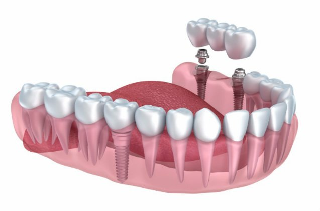 Top 5 Reasons Why Dental Implant Bridges Are Better Than Dentures?